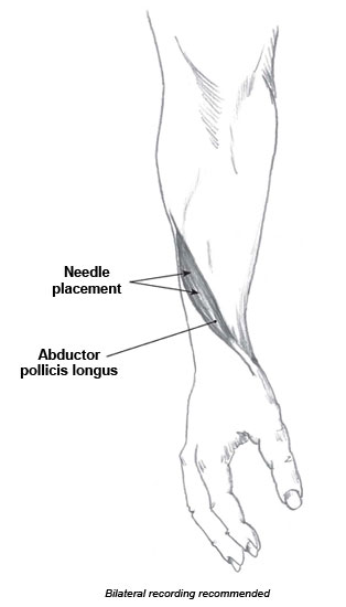 orimtec: illustrations: emg recording sites: abductor pollicis longus, Cephalic Vein