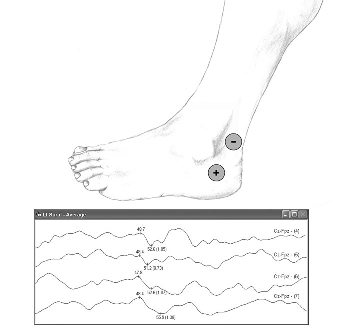 ORIMtec: Illustrations: EMG Recording Sites: Sural Nerve ...